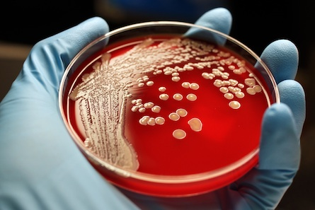 The truth about superbugs and antibiotics
