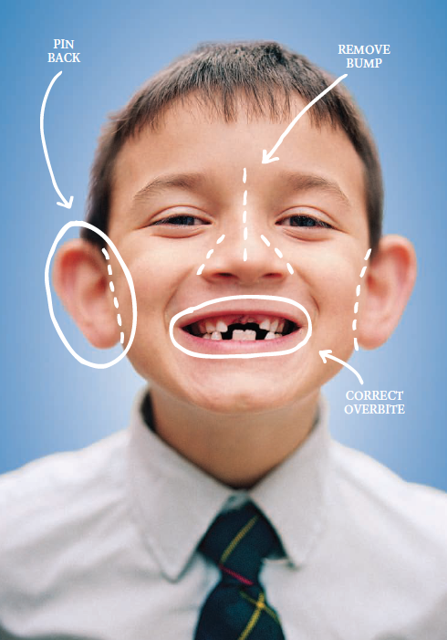 Child Plastic Surgery: Should A Parent Encourage A Child To Undergo Certain Procedures?