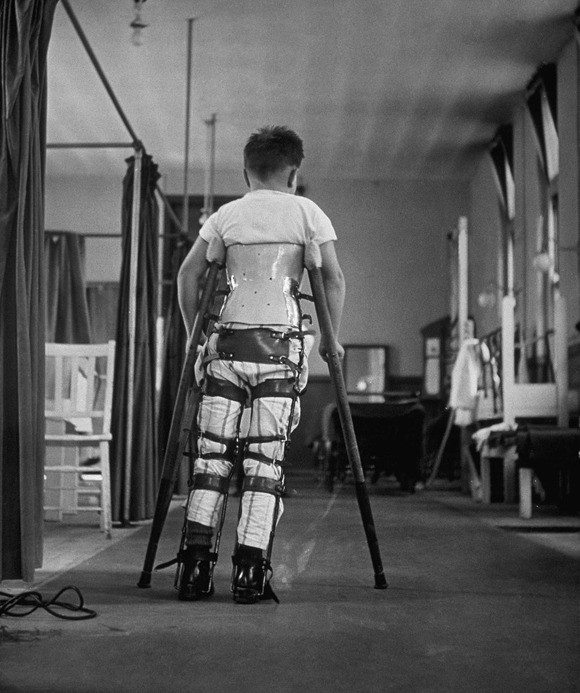A child suffering from Infantile Paralysis learning to walk with the aid of a special support, at Queen Mary's Hospital, London, 1947.  (George Konig/Keystone Features/Getty Images)