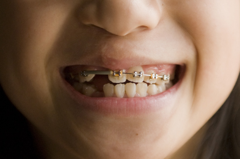 Girl with braces. (Joel Sartore/Getty)