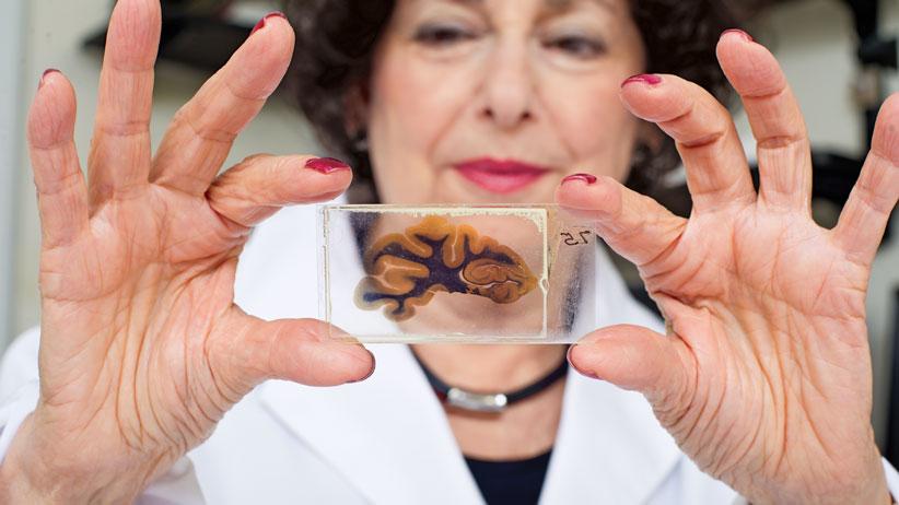 McMaster University: Einstein's Brain