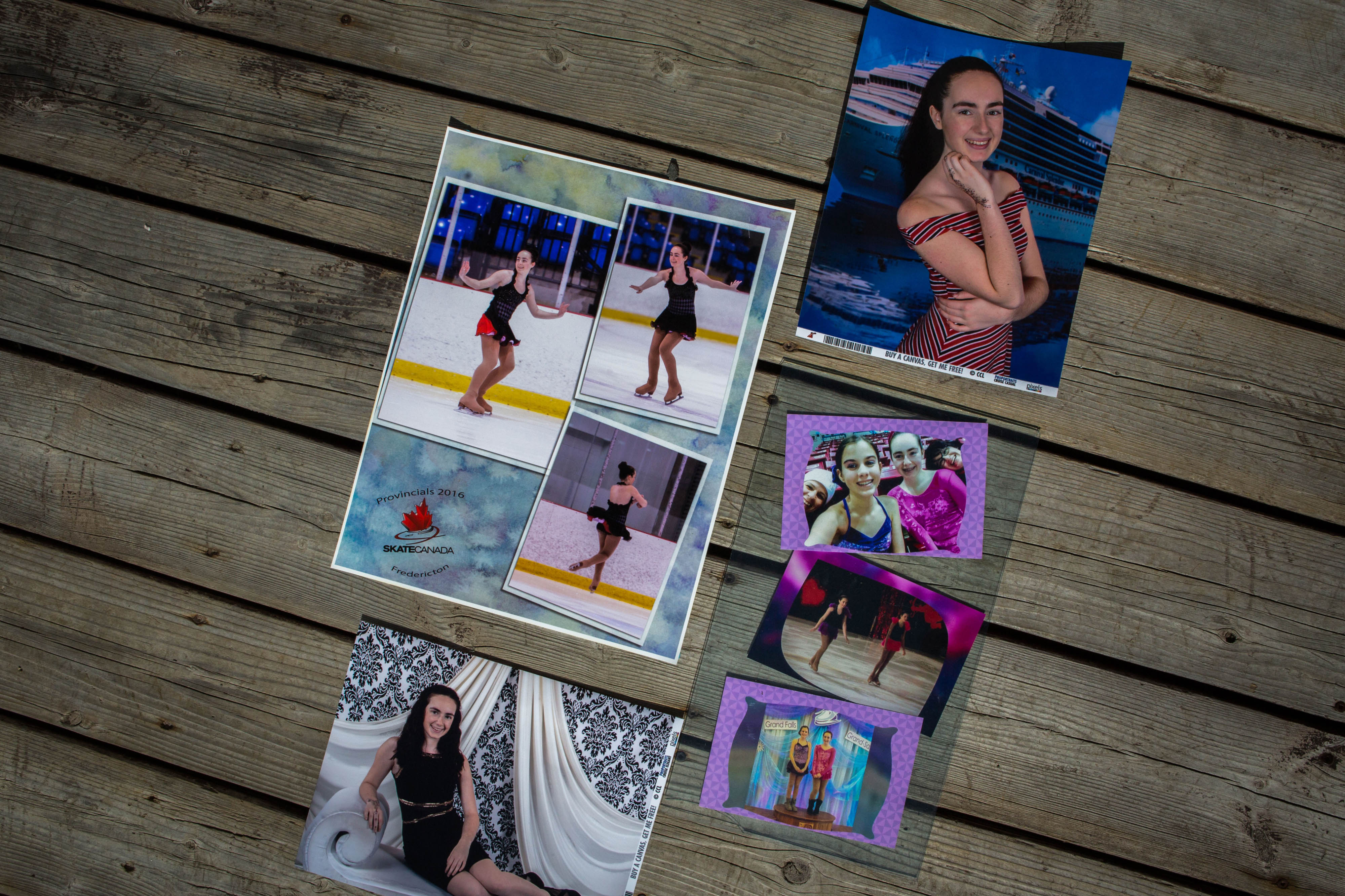 Before Gabrielle Cormier, 20, was diagnosed with a mysterious brain illness, she was an avid figure skater and student at Mount Allison University. She began losing her motor skills before her diagnosis and is now unable to walk without a cane, often losing her balance. (Photograph by Chris Donovan)